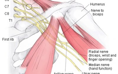 MOTIONrehab Offers New Brachial Plexus Injury Service